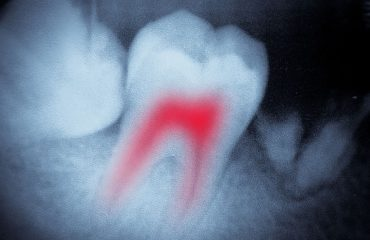 Periodontal treatment and the diabetic patient - image tooth-decay-large-370x240_c on https://www.foundationdental.com.au